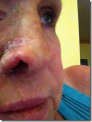 b-2014-Reddock Lana Nose Wk 2-3 a