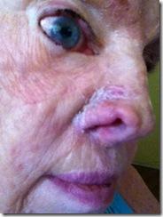 b-2014-Reddock Lana Nose Wk 2-3 d